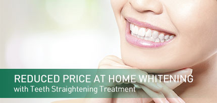 Half Price at home whitening