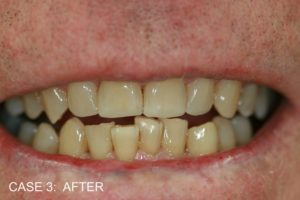 TR After Build Ups to Top Front Teeth