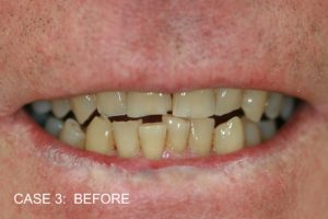 TR Before Build Ups Top Front Teeth