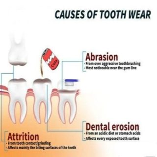 Tooth Wear 1 320x320