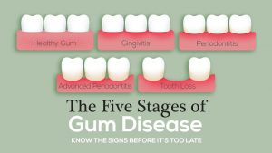 The 5 Stages Of Gum Disease 300x169